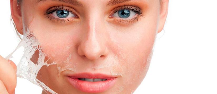 Dr-Elena-Crihan-Dermatolog-peeling-chimic