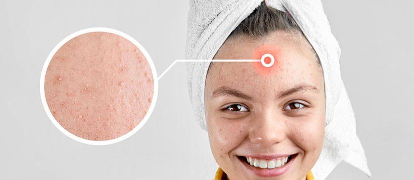 Dr_dermatolog_Elena_Crihan_acnee_2