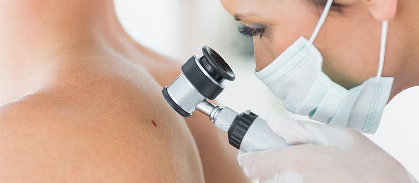 Dr_dermatolog_Elena_Crihan_alunite_pericol_3
