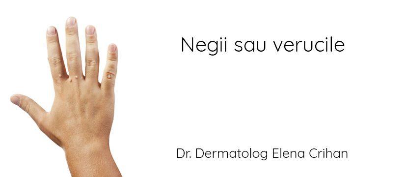 Dr_dermatolog_Elena_Crihan_negi_veruci_@