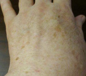 Dr_dermatolog_Elena_Crihan_pete_ficat-3