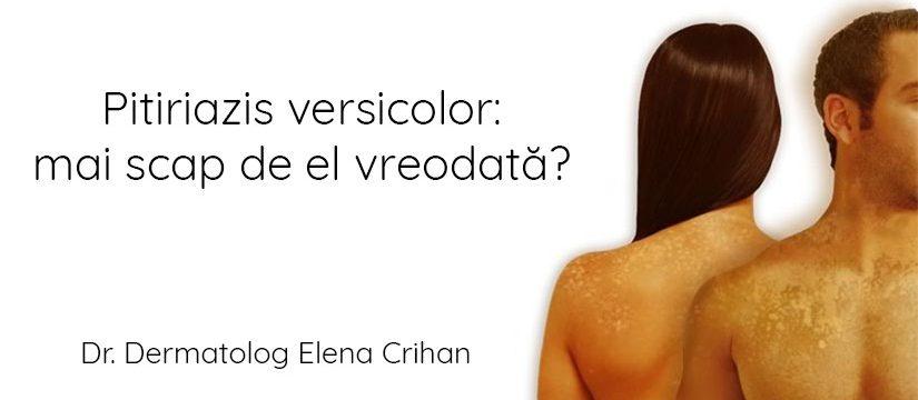 Dr_dermatolog_Elena_Crihan_pitiriazis