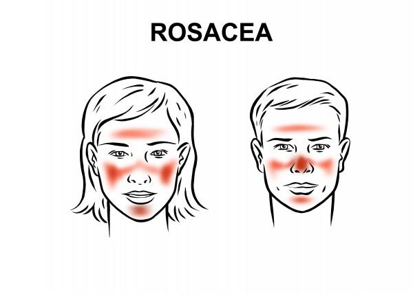 Dr_dermatolog_Elena_Crihan_rozacee