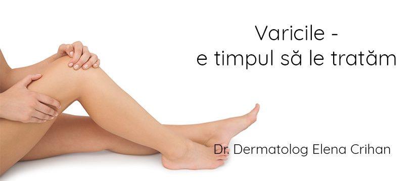 Dr_dermatolog_Elena_Crihan_varici