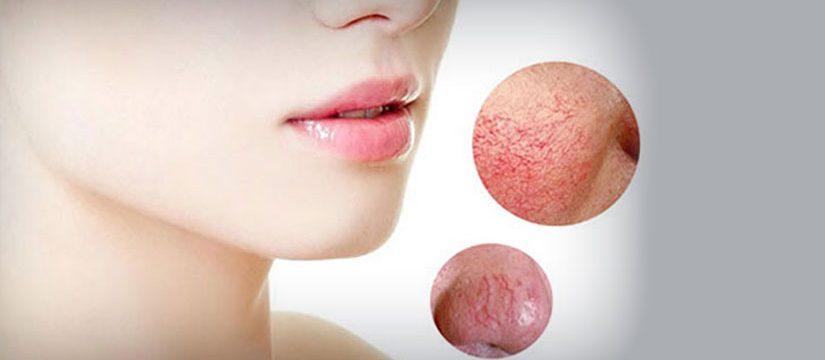 Dr_dermatolog_Elena_Crihan_vase_de_sange_sparte-2