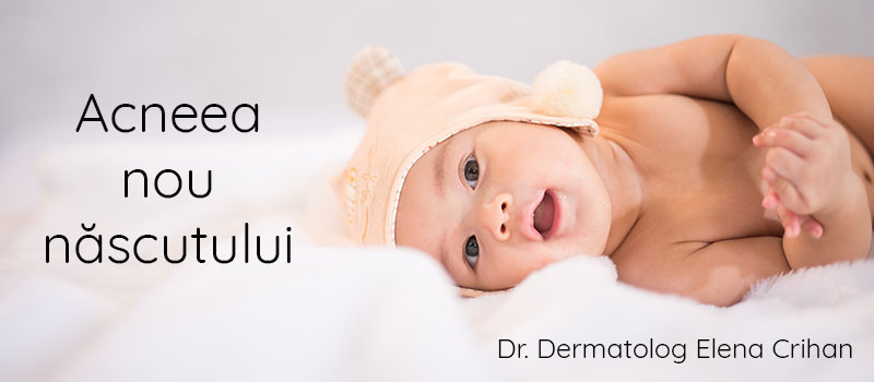 dermatolog_Elena_Crihan_acneea_bebelusului