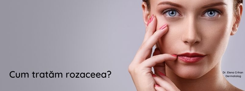 dermatolog_Elena_Crihan_cum_tratam_rozaceea